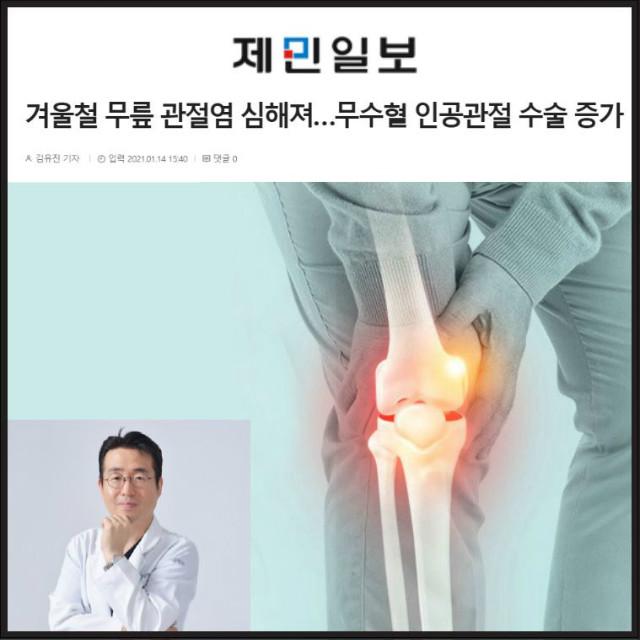 겨울철 무릎관절염 심해져... 무수혈 인공관절 수술 증가.JPG
